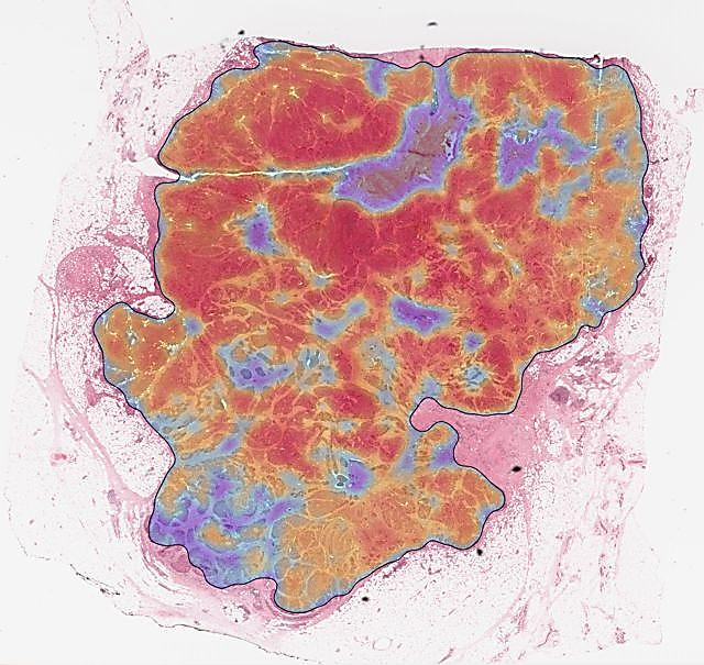 Image: TissueMark automated markup of a histological section (Photo courtesy of PathXL).
